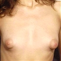 Tiny tits with huge areolas