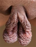 Big pussy lips
